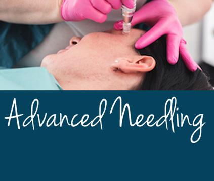 Advanced Needling