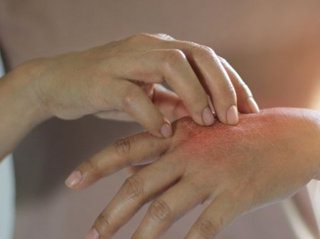 Anti-Fungal Skin & Nails