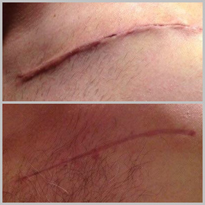Example of Scar repair