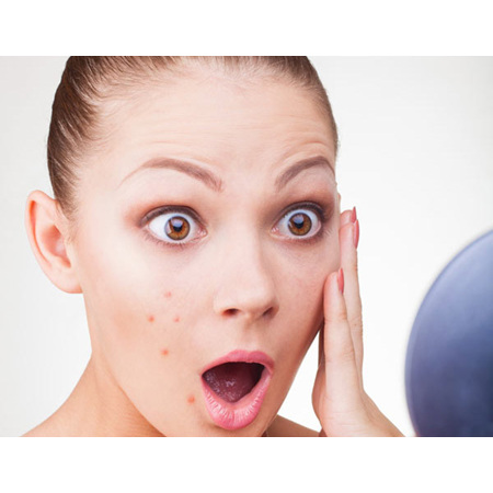 Four simple ways to get rid of pimples