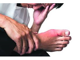 Gout Treatment Education and Consultation