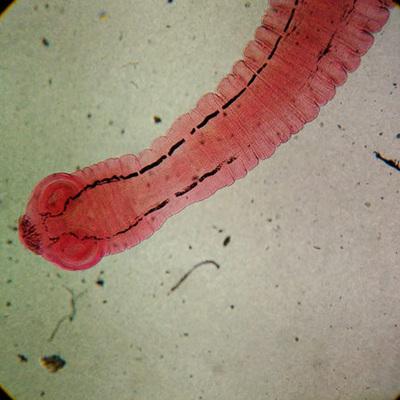 Gut Parasites and Auto-Immune Disease
