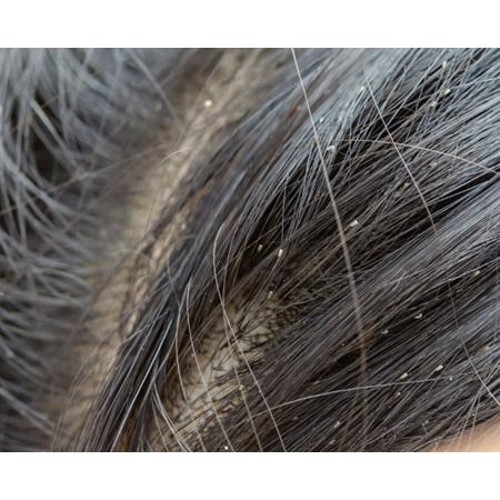 Head lice. Nits. Creepy crawlies.