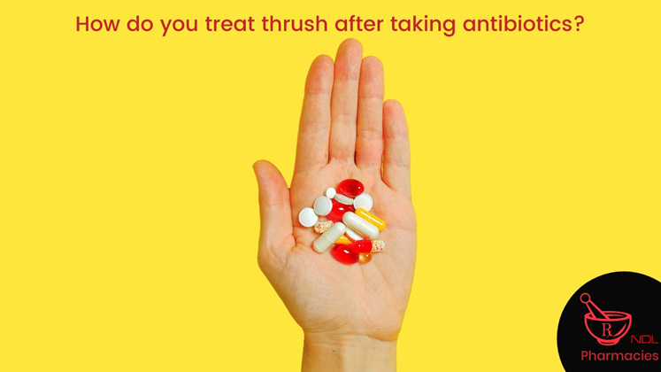 How do you treat thrush after taking antibiotics?