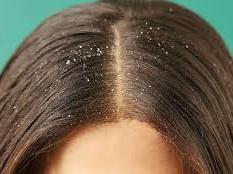 Medicated Hair