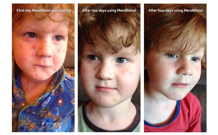 MendBlend used on Chicken Pox