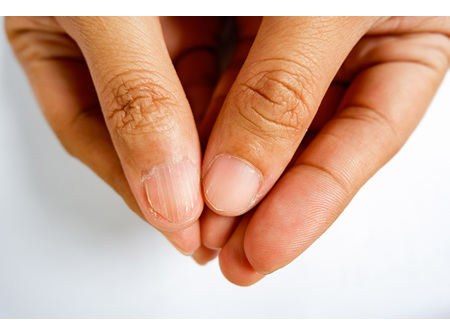 Nail Infections