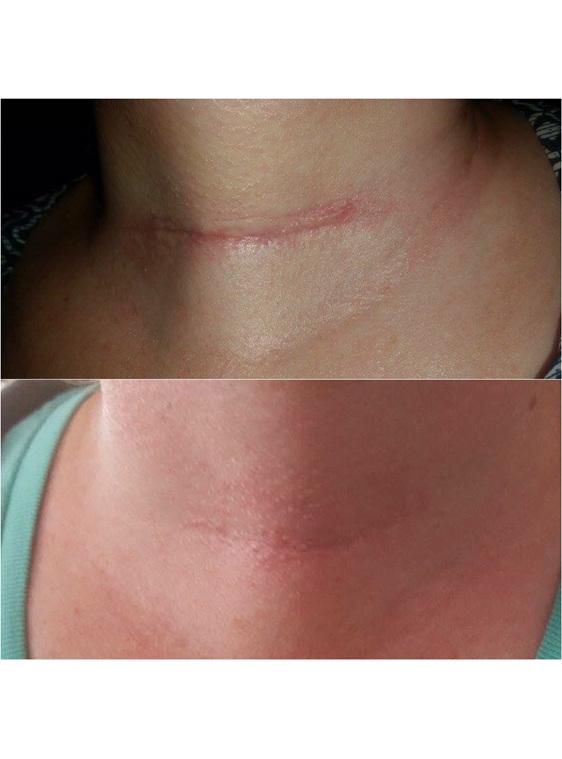 Natural scar blend that works