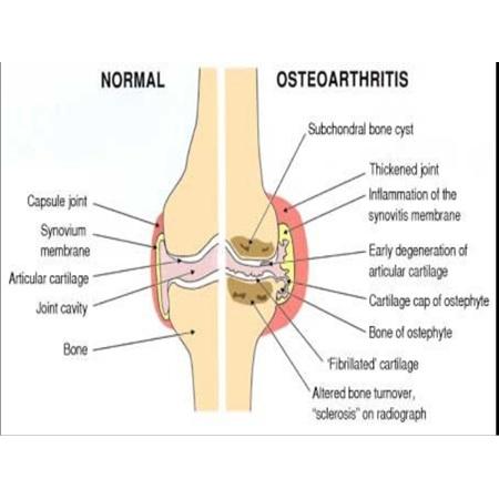 Oesteoarthritis