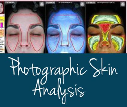 Photographic Skin Analysis