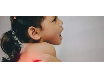 School Sores and Eczema Treatment