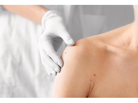 Skin Spot Checking