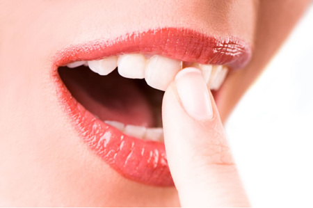 Tooth Mousse and Treatment Products