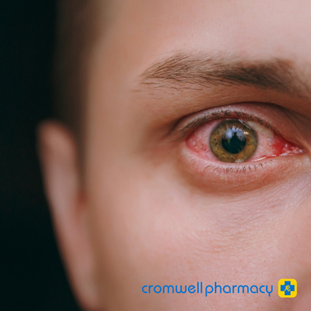 Top Tips for Eye Infections