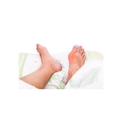 Uric Acid Testing and Gout Management